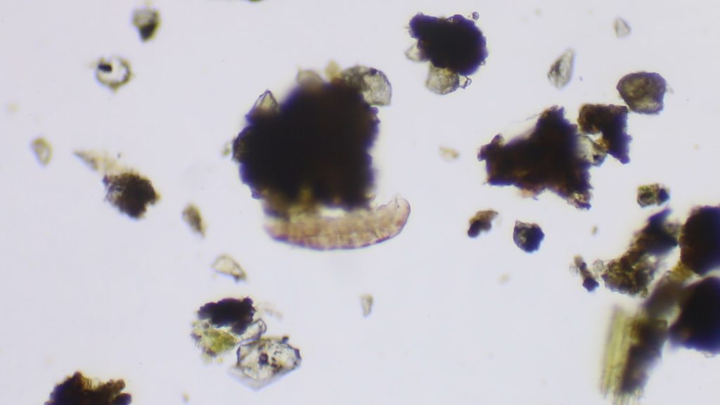 Tardigrade (water bear at 100x)