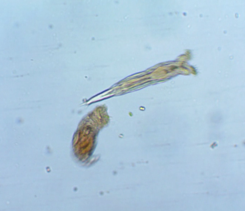Two rotifers in a single drop of water